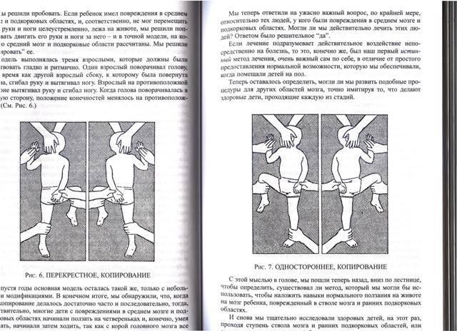 Иллюстрация 1 из 2 для Что делать, если у вашего ребенка повреждение мозга - Гленн Доман | Лабиринт - книги. Источник: Марина