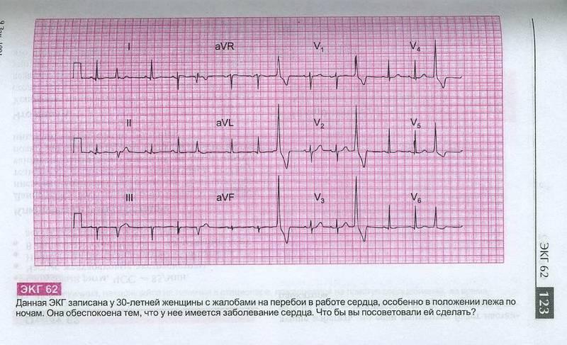 Как сделать так чтобы кардиограмма была хорошей