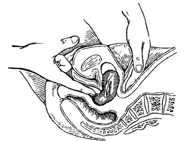 intimnie-znakomstva-armavir