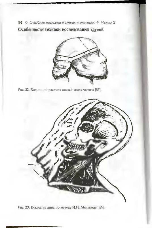 """Иллюстрация 12 к книге  """"Судебная медицина в схемах и рисунках """", фотография, изображение, картинка."""