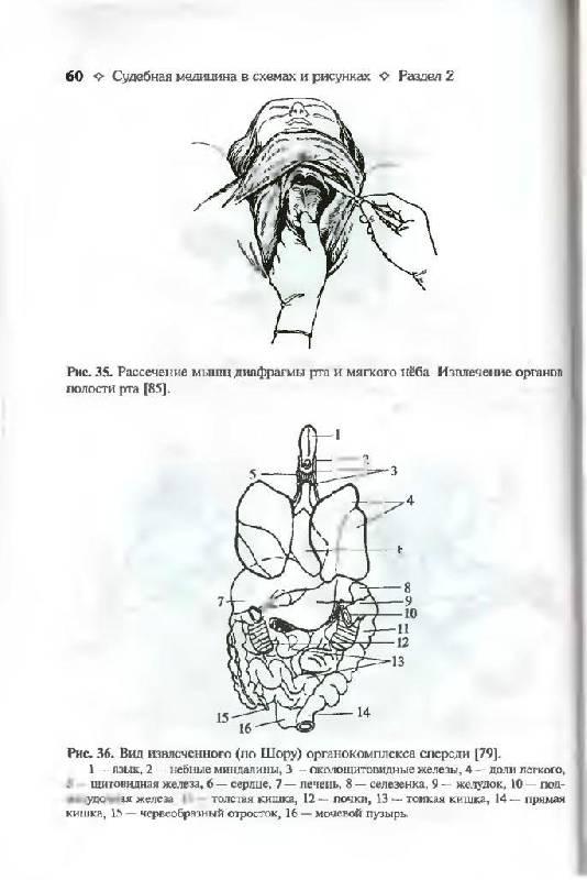 """Иллюстрация 15 к книге  """"Судебная медицина в схемах и рисунках """", фотография, изображение, картинка."""