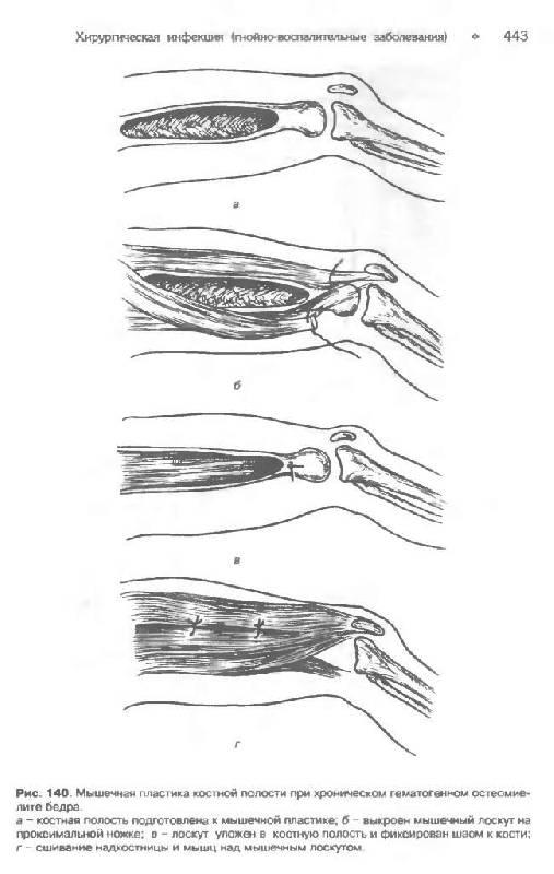 Учебник Общая Хирургия Гостищев Скачать Pdf