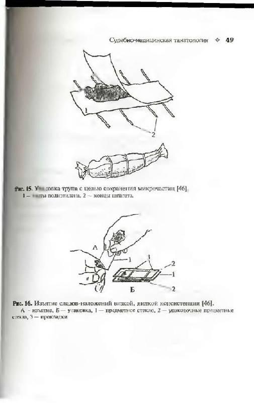 """Иллюстрация 10 к книге  """"Судебная медицина в схемах и рисунках """", фотография, изображение, картинка."""