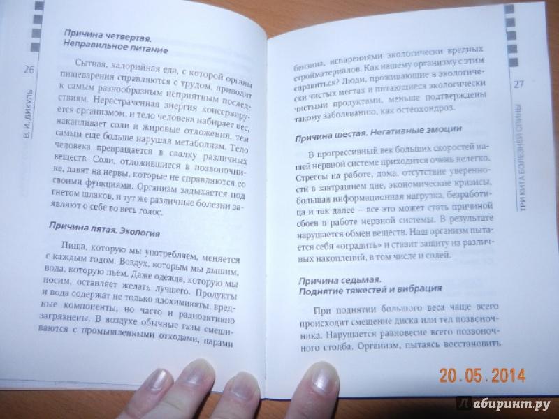 Кифосколиоз грудного отдела операция