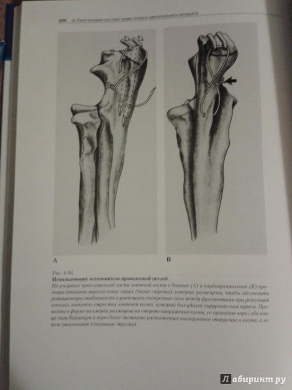 Иллюстрация 1 из 7 для Рентгенологический атлас по травматологии собак и кошек - Морган, Вулвекамп | Лабиринт - книги. Источник: Шнурок