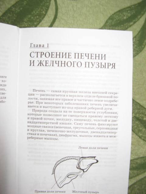 Иллюстрация 1 из 4 для Холецистит и другие болезни желчного пузыря - Георгий Болотовский | Лабиринт - книги. Источник: libe