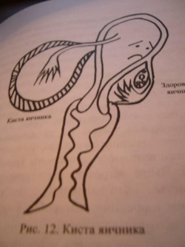 Иллюстрация 1 из 2 для Популярная психогинекология - Наталья Волкова | Лабиринт - книги. Источник: Magvayka
