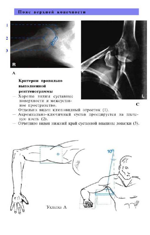 Иллюстрация 26 из 29 для Атлас рентгенологических укладок - Меллер, Райф | Лабиринт - книги. Источник: Юта
