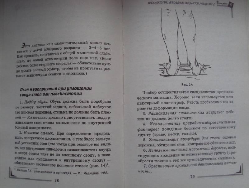 Операции при сколиозе в москве