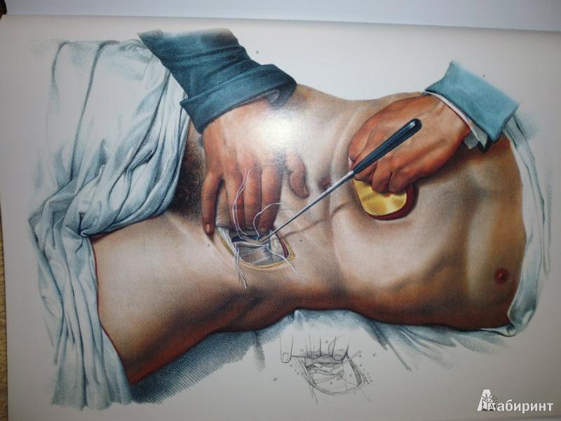 12 14 Bourgery Atlas Of Human Anatomy And