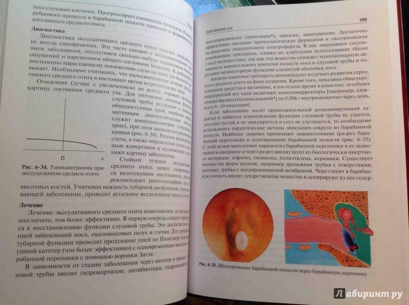 Учебник Оториноларингология Пальчун Магомедов