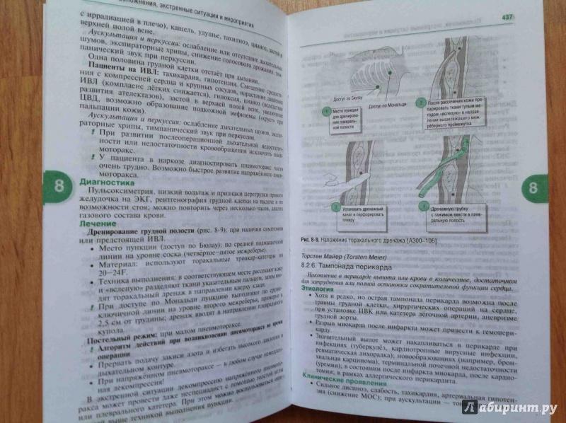 анестезиология под редакцией райнера шефера
