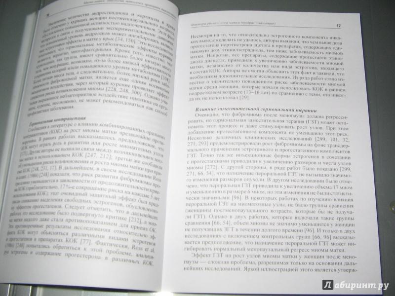 Иллюстрация 6 из 6 для Миома матки: этиология, патогенез, принципы диагностики - Ярмолинская, Цыпурдеева, Долинский | Лабиринт - книги. Источник: Alonka