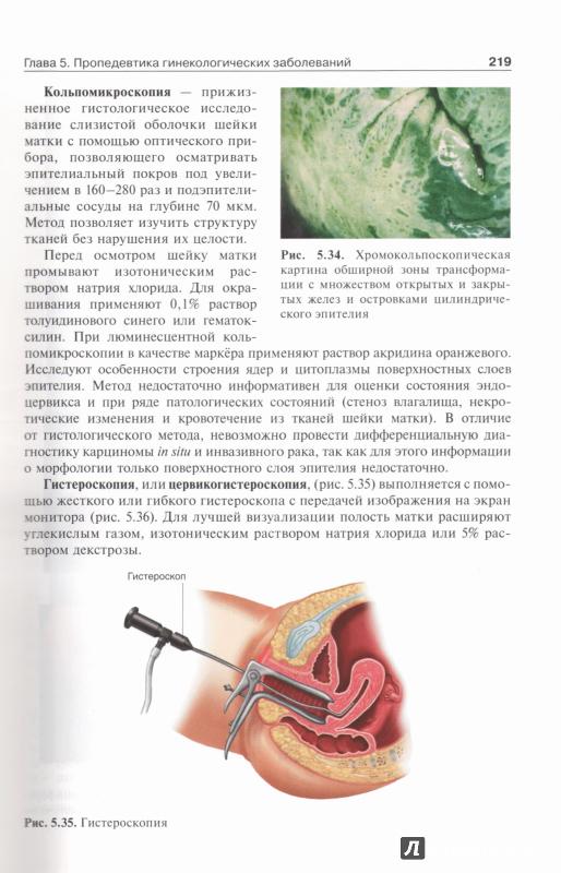 Иллюстрация 23 из 54 для Гинекология. Учебник - Радзинский, Фукс ...