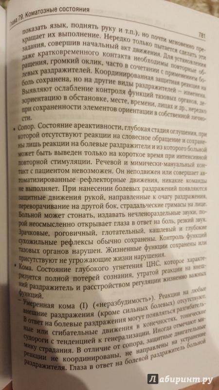 Иллюстрация 15 из 33 для Внутренние болезни. Учебник. В 2-х томах. Том 2 (+CD) - Валентин Моисеев | Лабиринт - книги. Источник: Den