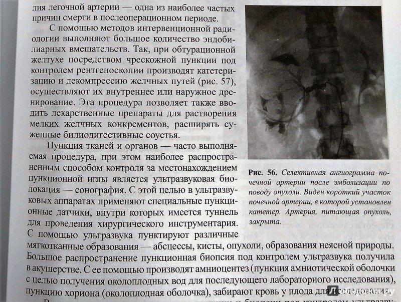 Лучевая диагностика учебник линденбратен