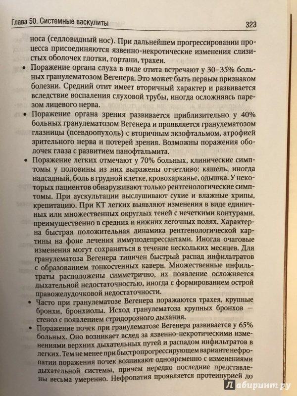 Иллюстрация 26 из 33 для Внутренние болезни. Учебник. В 2-х томах. Том 2 (+CD) - Валентин Моисеев   Лабиринт - книги. Источник: Ромыдтчъ