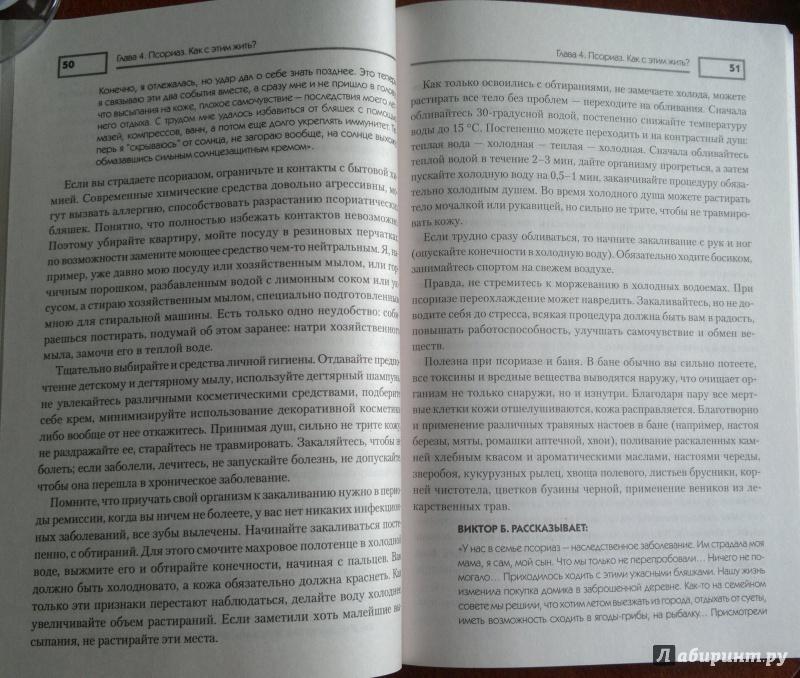 Иллюстрация 6 из 11 для Псориаз. Диета, лечение, профилактика - Оксана Салова   Лабиринт - книги. Источник: Скочилова  Елена