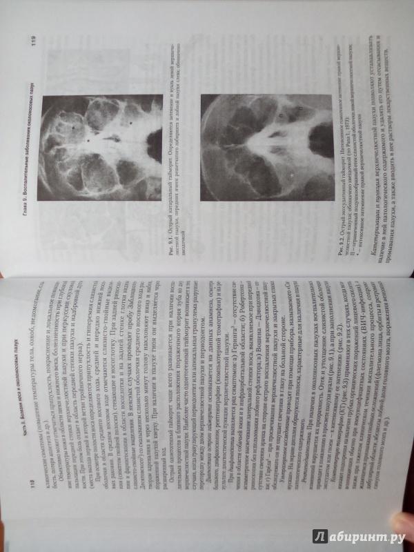 Иллюстрация 3 из 24 для Оториноларингология: Учебник для вузов - Бабияк, Говорун, Накатис | Лабиринт - книги. Источник: Кувшинова  Таня Константиновна