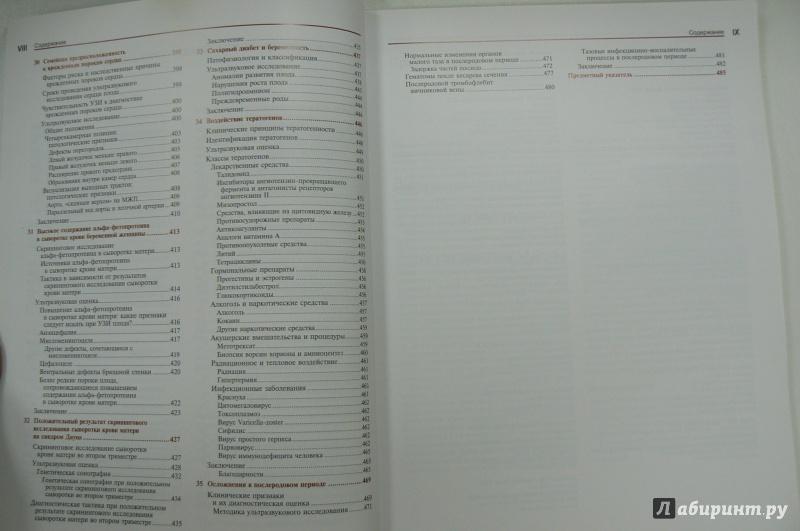 Иллюстрация 3 из 10 для Ультразвуковая диагностика. Практическое решение клинических проблем. Том 3. УЗИ в акушерстве - Эдвард Блют | Лабиринт - книги. Источник: Марина