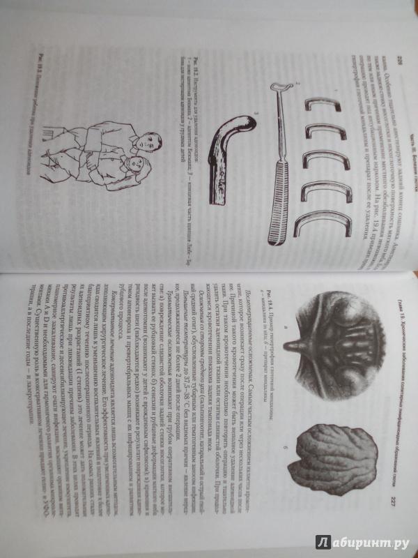 Иллюстрация 6 из 25 для Оториноларингология: Учебник для вузов - Бабияк, Говорун, Накатис | Лабиринт - книги. Источник: Кувшинова  Таня Константиновна