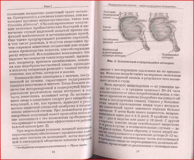 Иллюстрация 2 из 8 для Очистите свой организм от болезней - Андреас Мориц | Лабиринт - книги. Источник: alexss