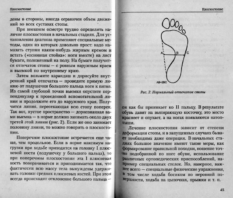 Иллюстрация 11 из 15 для Болят ноги: Что делать? | Лабиринт - книги. Источник: Росинка
