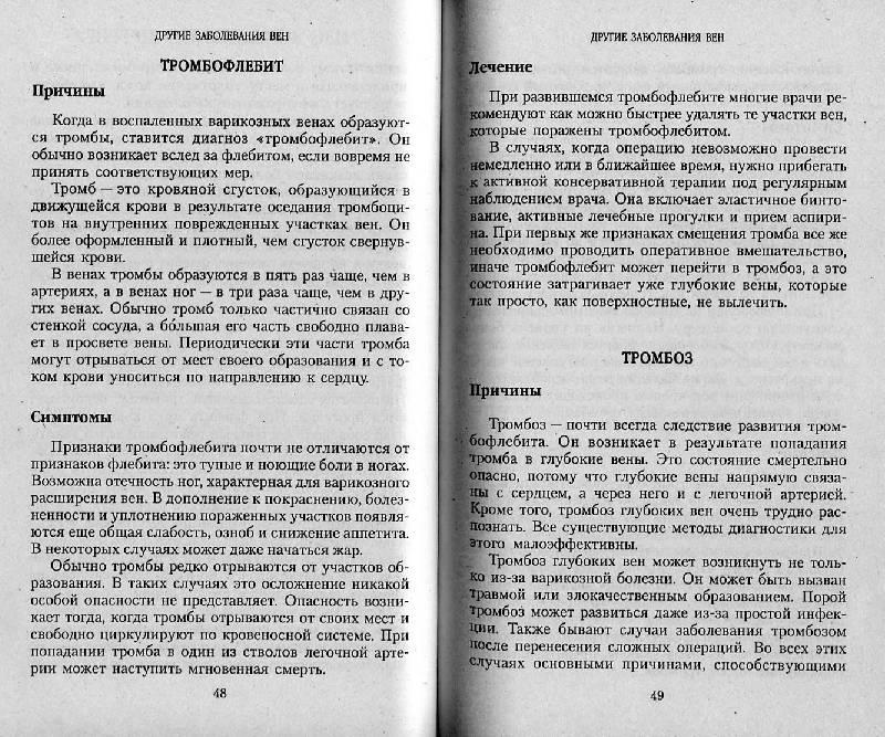 Иллюстрация 1 из 6 для Заболевания вен: варикоз и тромбофлебит   Лабиринт - книги. Источник: Росинка