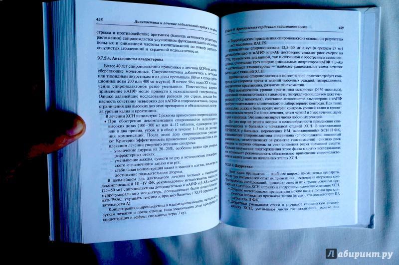 Иллюстрация 8 из 9 для Диагностика и лечение заболеваний сердца и сосудов - Григорий Арутюнов   Лабиринт - книги. Источник: sakedas