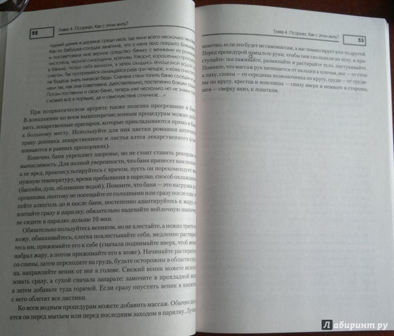 Иллюстрация 7 из 11 для Псориаз. Диета, лечение, профилактика - Оксана Салова | Лабиринт - книги. Источник: Скочилова  Елена