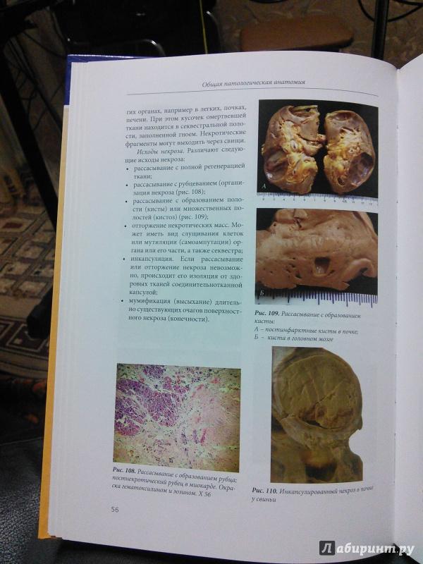 Иллюстрация 12 из 14 для Патоморфологическая диагностика болезней животных. Атлас-альбом - Белкин, Жаров, Прудников | Лабиринт - книги. Источник: Like The Wind