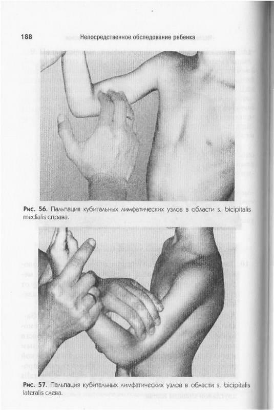 Иллюстрация 18 из 19 для Непосредственное обследование ребенка: Учебное пособие - Владимир Юрьев   Лабиринт - книги. Источник: Ялина