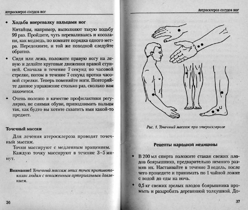 Иллюстрация 9 из 15 для Болят ноги: Что делать? | Лабиринт - книги. Источник: Росинка